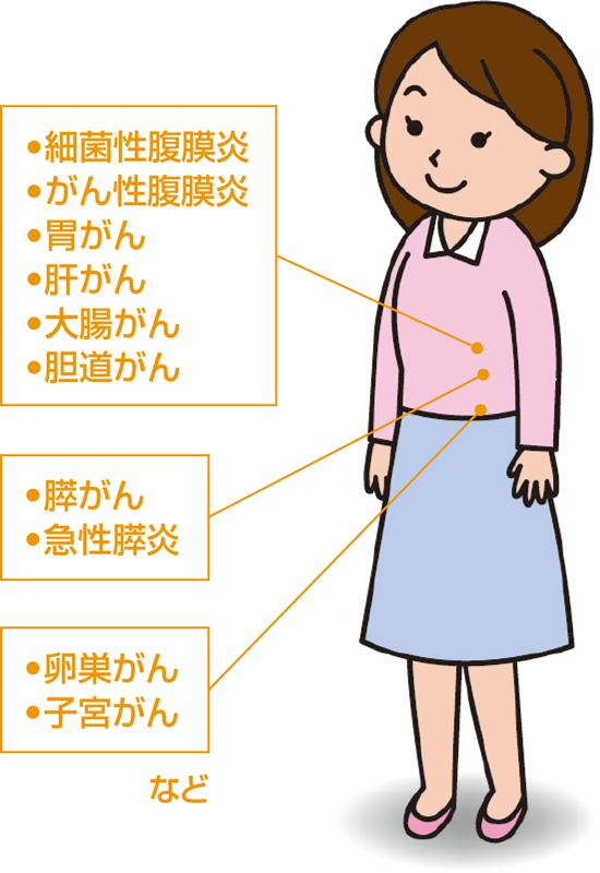 腹水の基礎知識 | 腹水濾過濃縮再静注法 (CART)